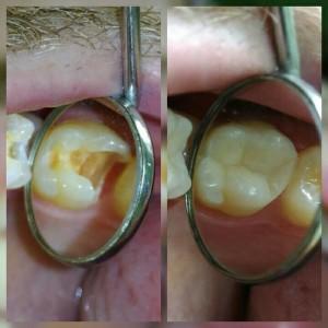 Реставрация зуба композитом Пантелеенко