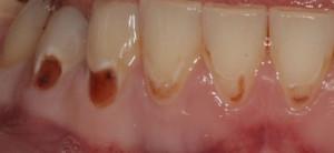 Реставрация зуба композитом до Гаглоев