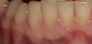 Реставрация зуба композитом после Гаглоев