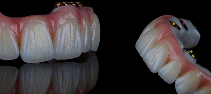 Протезирование зубов при их полном отсутствии
