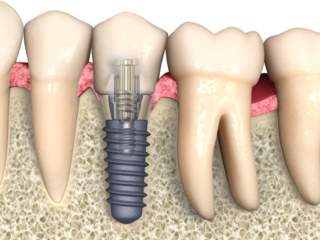 Отзывы пациентов об имплантации зубов в Москве
