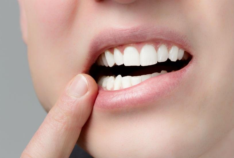 Вставить зубы недорого в Москве - цены, где вставить протезы