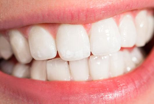 восстановить улыбку композитными винирами