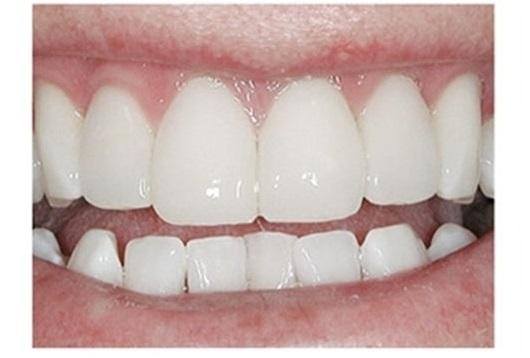 зубы после установки композитных виниров