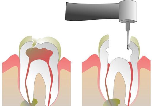 Реставрация сильно разрушенных зубов