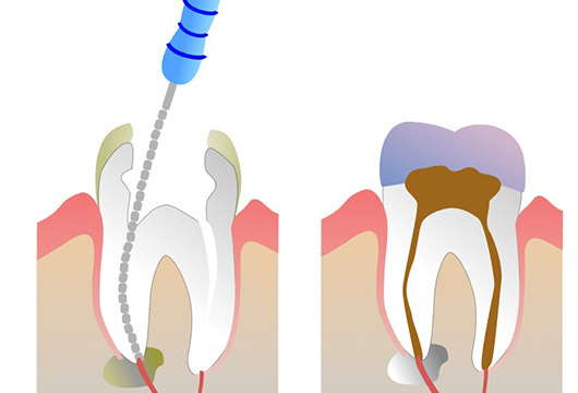 Восстановление сильно разрушенных зубов