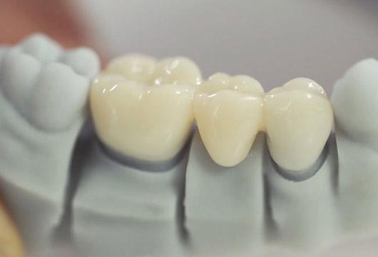 Зубной мост из металлокерамики