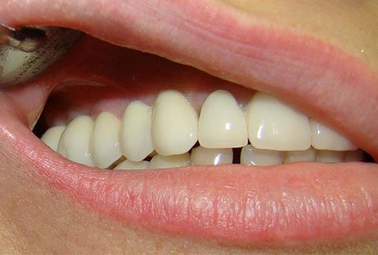 имплантация фронтальных зубов