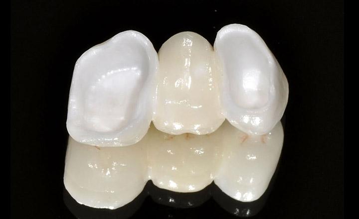 Металлопластиковые коронки на зубы{amp}#xA;